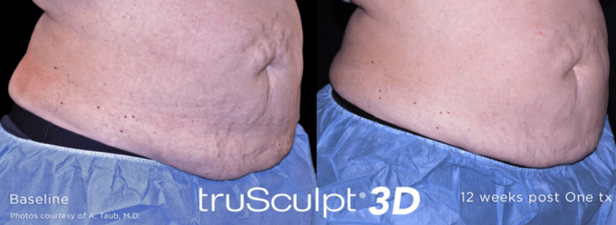 Not-Just-Faces-Trusculpt-3D-Before-After1