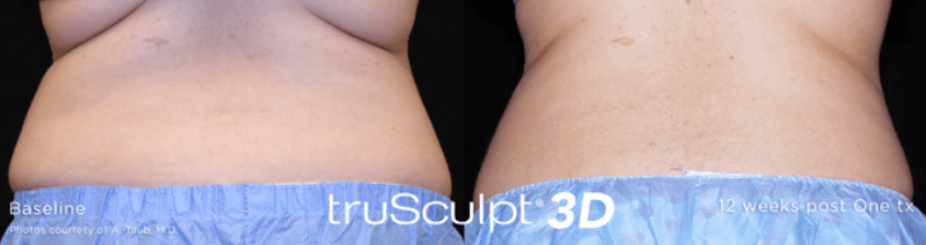 Not-Just-Faces-Trusculpt-3D-Before-After2