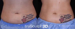 Not-Just-Faces-Trusculpt-3D-Before-After4
