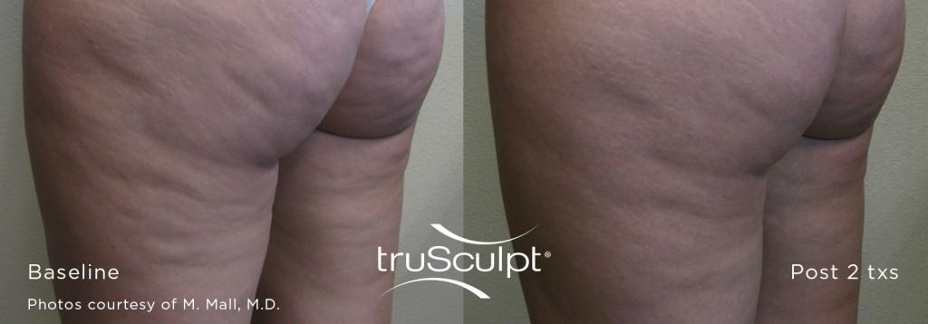 truSculpt-Cellulite