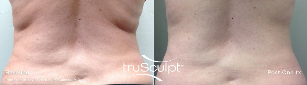 truSculpt_-before-after