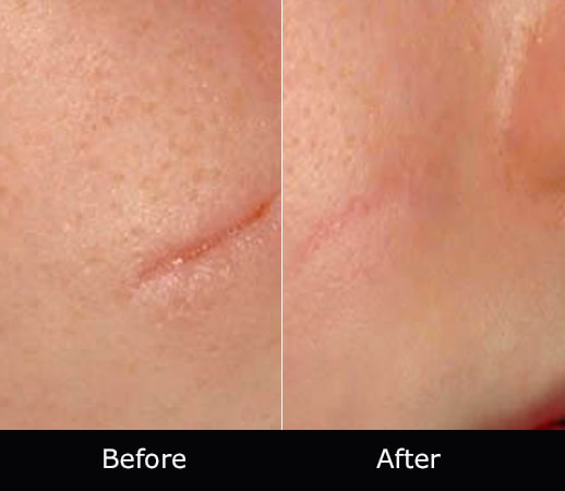 Rejuvenation-Therapy-Before-After