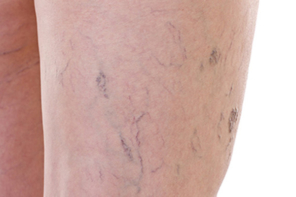 Sclerotherapy Laguna Niguel