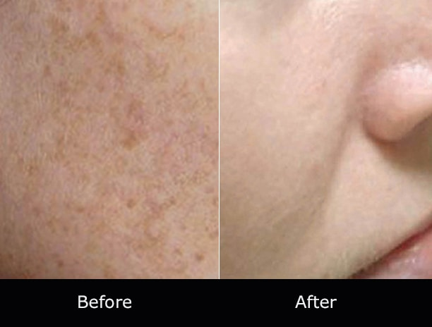 Fractional Laser Therapy Laguna Niguel | Not Just Faces