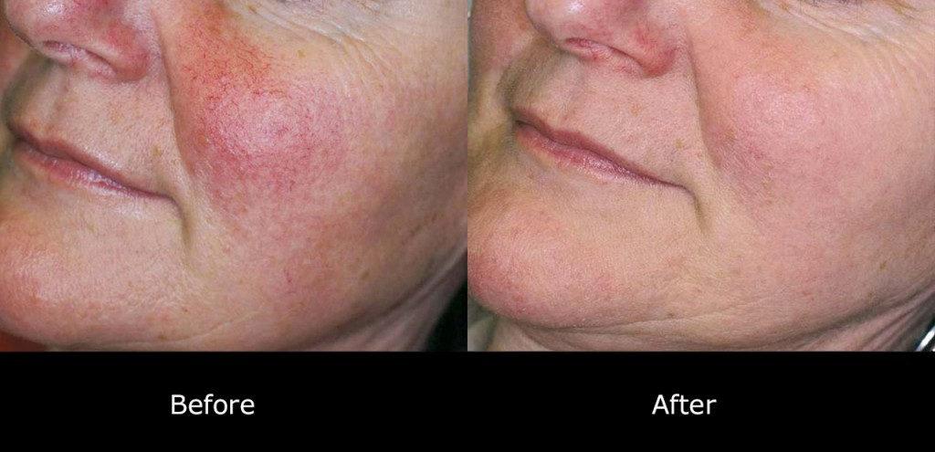 rosacea-treatment