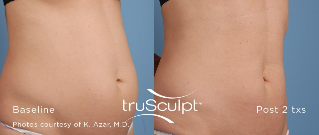 truSculpt-Before-After-2