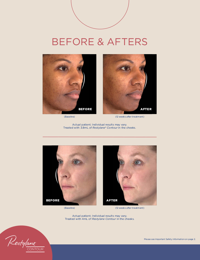 new Restylane Product