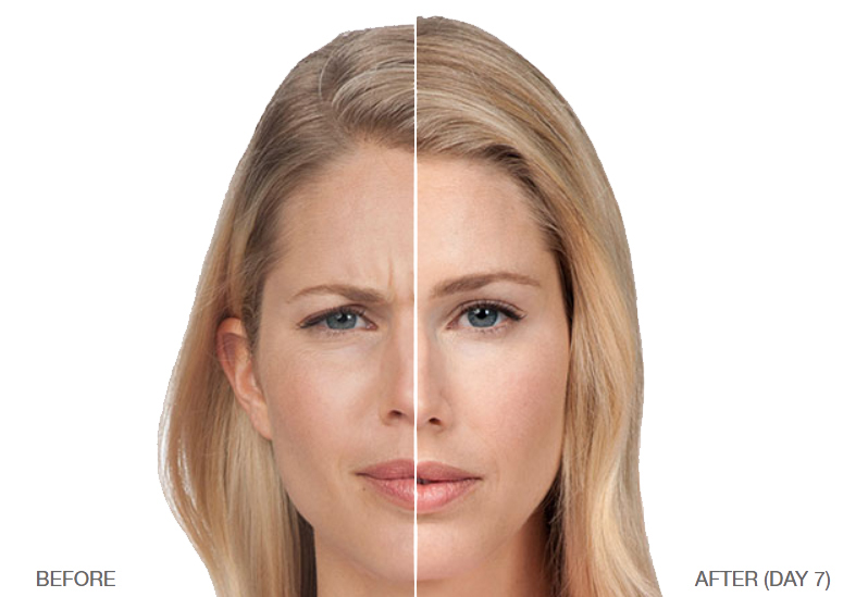 botox and dysport laguna niguel